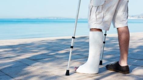 Mann mit gebrochenem Bein am Wasser
